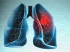 Akciğer Kanserinden Korunmanın Yolları
